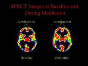 02-spect-images-at-baseline-and-during-meditation